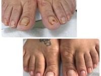 Foto: Antes e depois de tratamento feito pela podóloga Roneide de Souza Santos