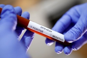 Mais 2 mortes por Covid-19 são registradas em SP; total no Brasil sobe para 116
