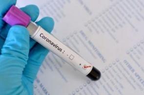 Três Lagoas registra primeira morte por Covid-19 totalizando 5 óbitos em MS