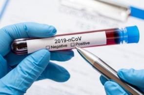 Casal de indígenas testam positivo e Douradina soma 4 casos de coronavírus