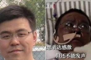 Morre médico chinês que ficou com a pele escura durante tratamento contra o coronavírus