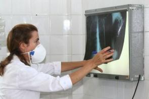 Fiocruz vai testar em MS eficácia da vacina contra tuberculose para covid-19
