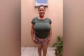 Helen Cristina de Nova Andradina sofre com gigantomastia e pede ajuda para cirurgia