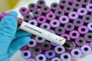 Número recorde de casos de Covid -19 preocupa Governo do Estado