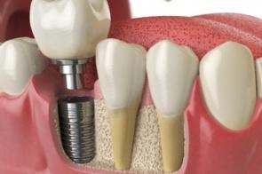 Implante unitário
