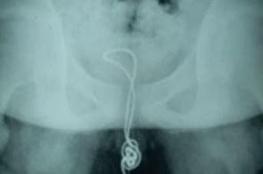 Adolescente fica com cabo USB preso no pênis e é socorrido na China