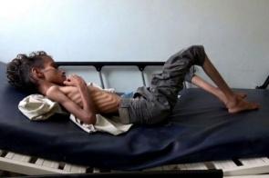 Fome e doenças matam 85.000 crianças no Iêmen