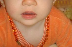 Colar de âmbar para bebês: entenda os riscos e muito cuidado