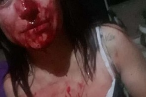 Jovem agredida por namorado passa por cirurgia