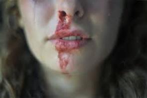 """""""Quem te ama não te agride!"""" diz campanha contra a violência no namoro"""