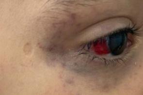 Padrasto tortura menino de 3 anos após criança fazer xixi na cama