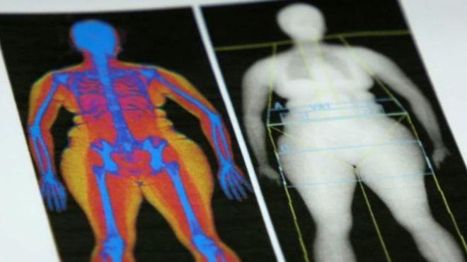 Jornalista da BBC diz que se considera uma pessoa saudável por fora, mas não sabe o que está sob sua pele /