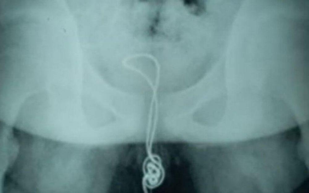 Duouduo alega que inseriu objeto por curiosidade e, após sentir dores, notou que o cabo estava preso no pênis dele (Foto: Reprodução/AsiaWire)