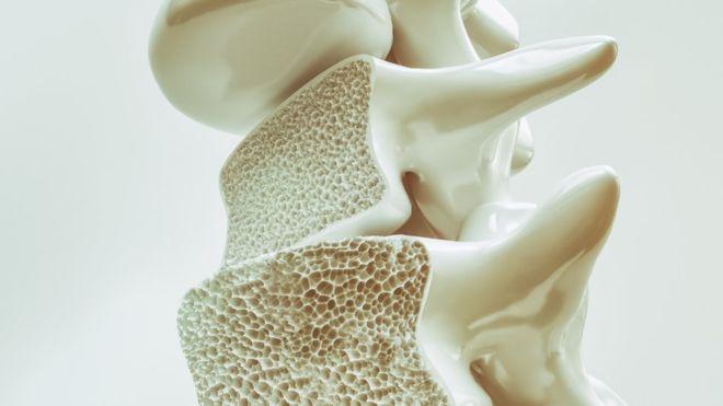 A osteoporose acomete mais mulheres - estima-se que sejam 200 milhões delas afetadas no mundo todo / Foto: Getty Images